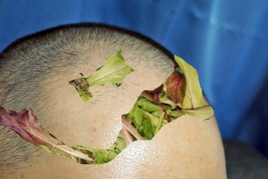 男性の頭皮とベビーリーフ